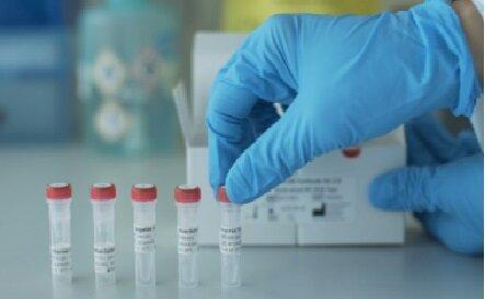 15 نفر از کادر درمانی استان ایلام به کرونا مبتلا شده اند