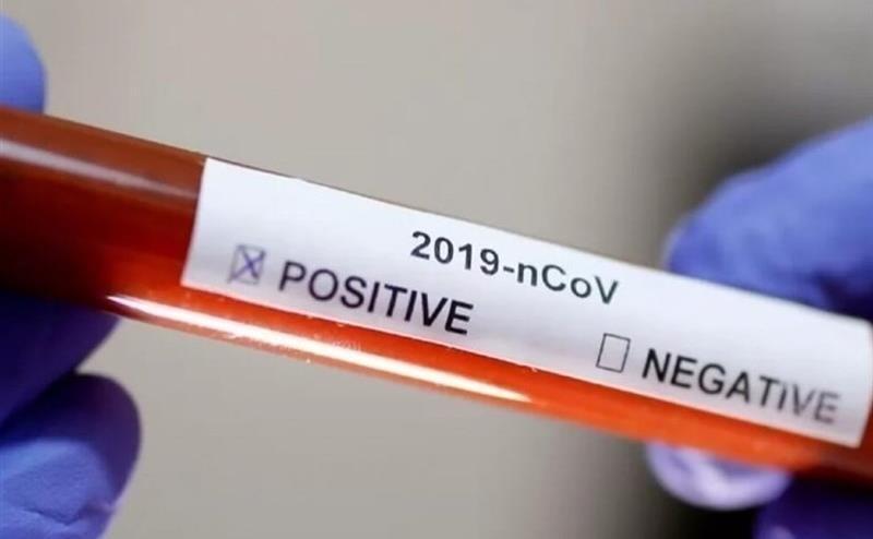 آیا خون بهبودیافتگان کرونا می تواند به نجات جان بیماران دیگر کمک کند؟