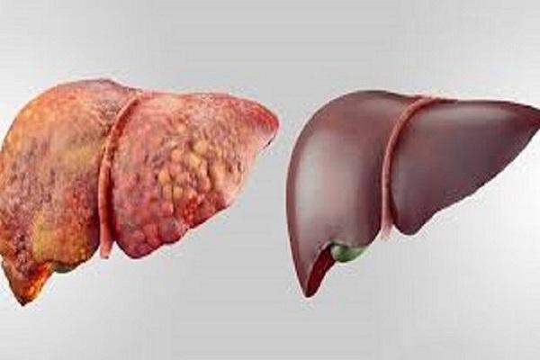ارتباط بین بیماری کبد چرب و سرطان کبد