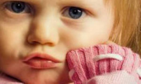 اسهال بچه ها را جدی بگیرید